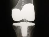 protesis-total-de-rodilla-2