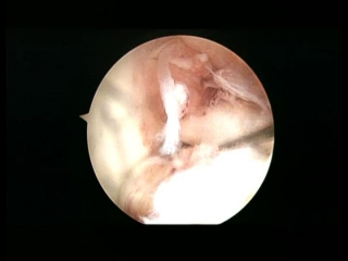 ligamento cruzado anterior roto