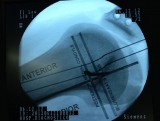 recostruccion-de-ligamento-patelo-femoral-trans-operatorio2