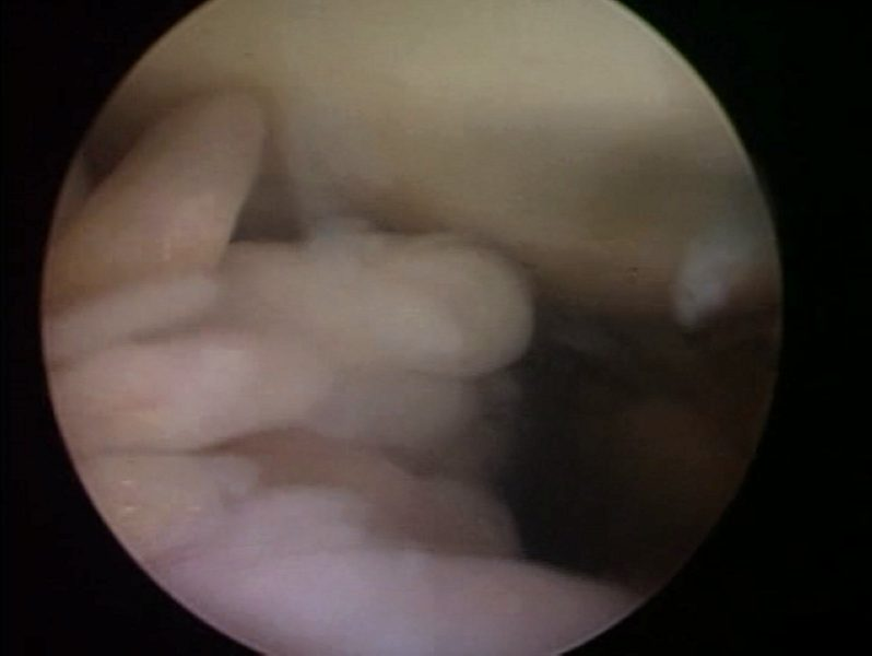 1sinovitis1lipoma1arborescens