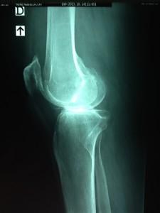 Artrosis medial de rodilla 2