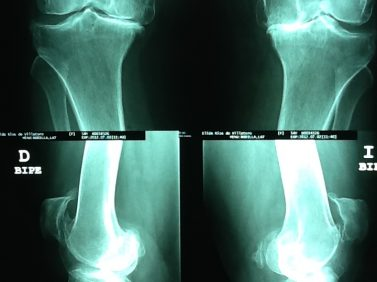 Prótesis de rodilla