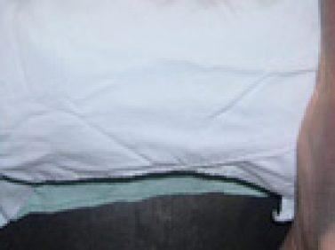 Tendón de Aquiles Bilateral