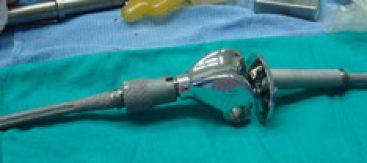 Protesis de reconstrucción de rodilla