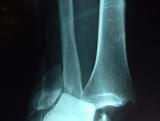 luxo-fractura-de-tobillo1