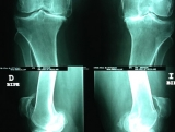 artrosis-de-rodilla-bilateral