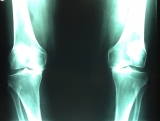 artrosis-medial-ambas-rodillas