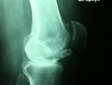 artrosis-medial2
