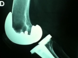 protesis-de-rodilla2
