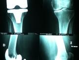 protesis-total-de-rodilla