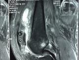 recostruccion-de-ligamento-patelo-femoral-post-operatorio