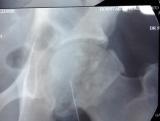artrograma-de-ruptura-de-labrum-de-cadera-cam1