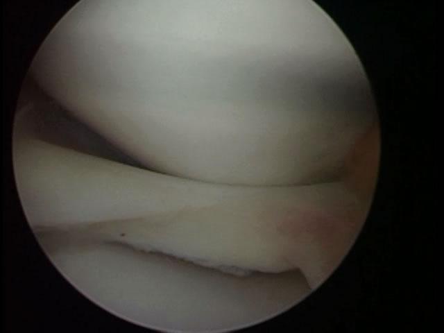 Problemas comunes de la rodilla que ameritan cirugía
