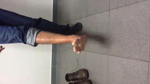 Reparo tendón de aquiles con refuerzo de flexor largo del Hallux