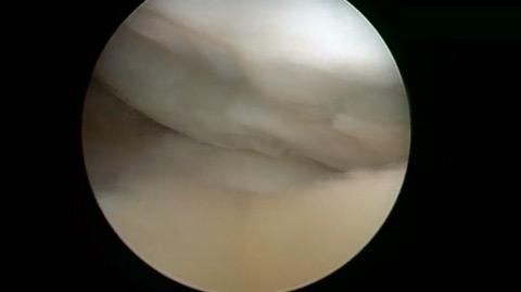Ulcera condral