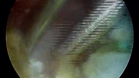Video 12